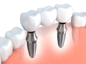 Dental Implants Dentist Fairbanks