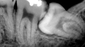 wisdom-teeth-removal-fairbanks